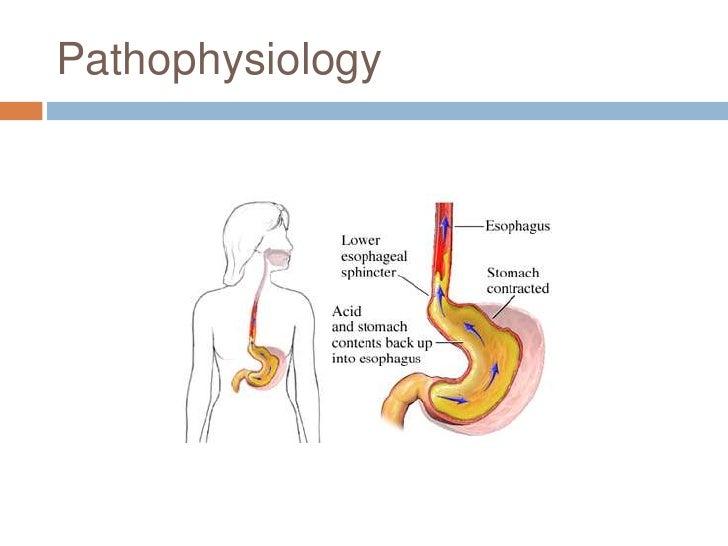 Etiology of gerd