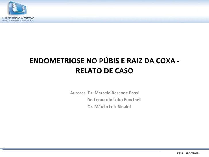 ENDOMETRIOSE NO PÚBIS E RAIZ DA COXA - RELATO DE CASO Autores: Dr. Marcelo Resende Bassi Dr. Leonardo Lobo Poncinelli Dr. ...