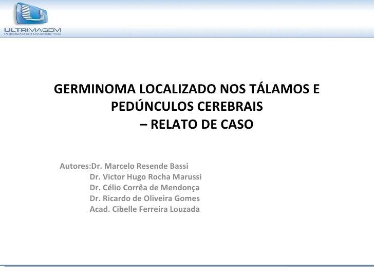GERMINOMA LOCALIZADO NOS TÁLAMOS E PEDÚNCULOS CEREBRAIS   – RELATO DE CASO Autores:Dr. Marcelo Resende Bassi Dr. Victor Hu...