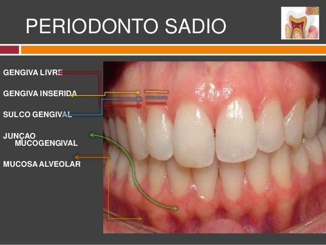 carranza periodontia clinica pdf download portugues