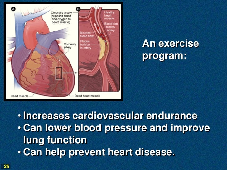 An exercise                             program:     • Increases cardiovascular endurance     • Can lower blood pressure a...