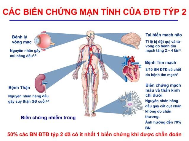 Bệnh lý võng mạc Nguyên nhân gây mù hàng đầu1,2 Bệnh Thận Nguyên nhân hàng đầu gây suy thận GĐ cuối3,4 Bệnh Tim mạch Tai b...