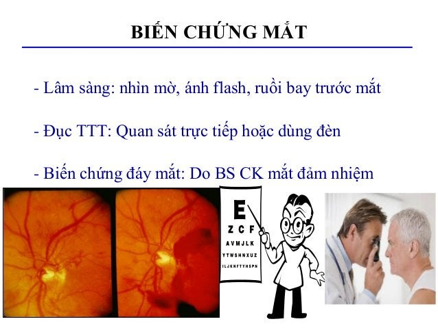 BIẾN CHỨNG MẮT - Lâm sàng: nhìn mờ, ánh flash, ruồi bay trước mắt - Đục TTT: Quan sát trực tiếp hoặc dùng đèn - Biến chứng...