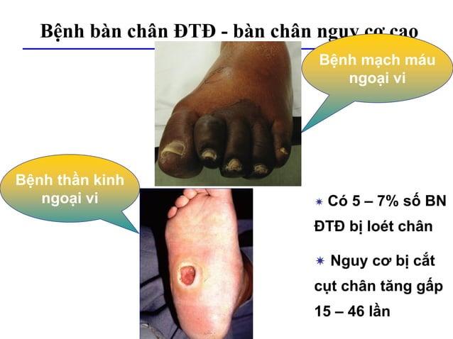 Bệnh bàn chân ĐTĐ - bàn chân nguy cơ cao Bệnh mạch máu ngoại vi Bệnh thần kinh ngoại vi  Có 5 – 7% số BN ĐTĐ bị loét chân...