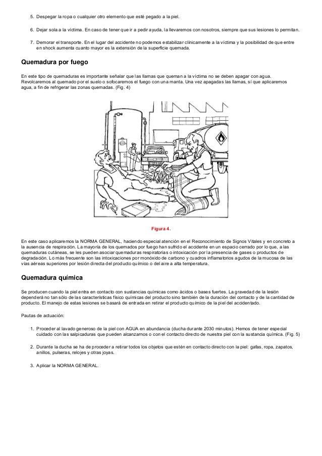 Moderno Marcos De Cuadros Quemaduras Bosquejo - Ideas Personalizadas ...