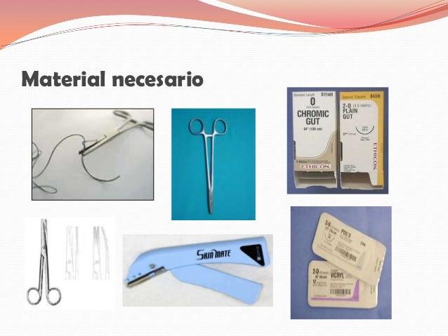 Material necesario