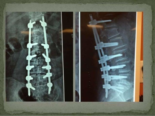 Nuevas Tendencias En Cirugia De Columna