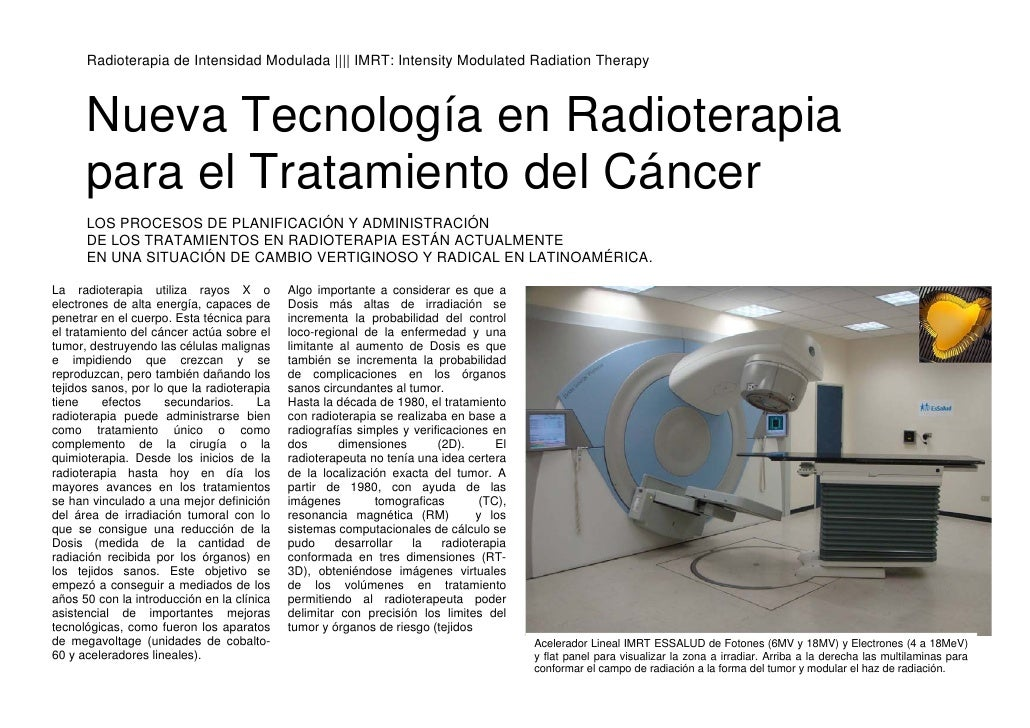 Radioterapia de Intensidad Modulada |||| IMRT: Intensity Modulated Radiation Therapy          Nueva Tecnología en Radioter...
