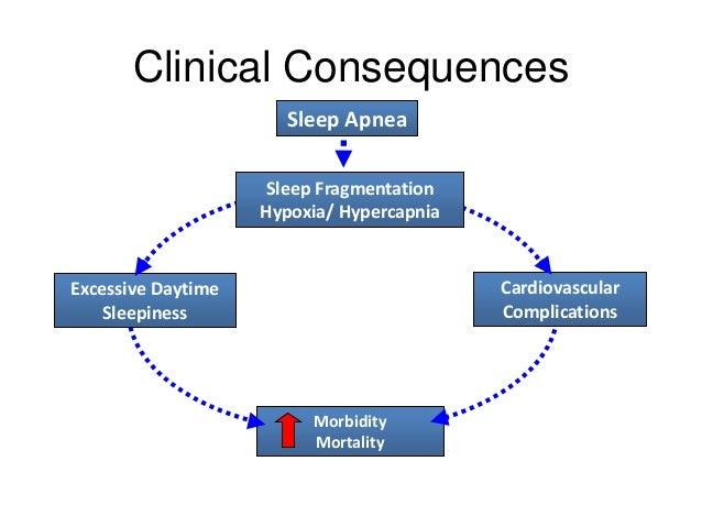 Obstructive Sleep Apnea And Obesity