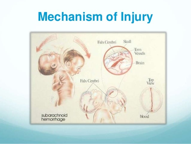 Nur415 - Shaken Baby Syndrome