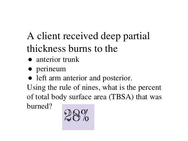 Nurs 360 Burns