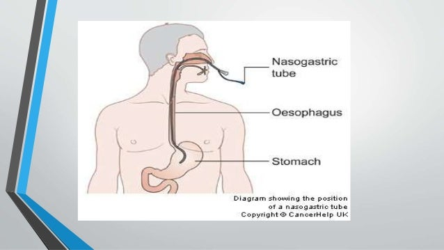 complications of nasogastric tube feeding pdf