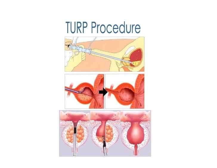 Nursing care process (askep) turp syndrome