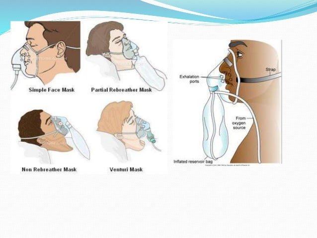 Chapter 16 Routine Airway Management as well Oxygen Nasal Cannula Adult W7 Ft Tube further Curaplex Partial Non Rebreathing Mask as well Unanticipated Difficult Tracheal Intubation In Paediatrics All India Difficult Airway Association Guidelines moreover Respiratory Anesthesia Face Masks 1969. on pediatric oxygen mask case of