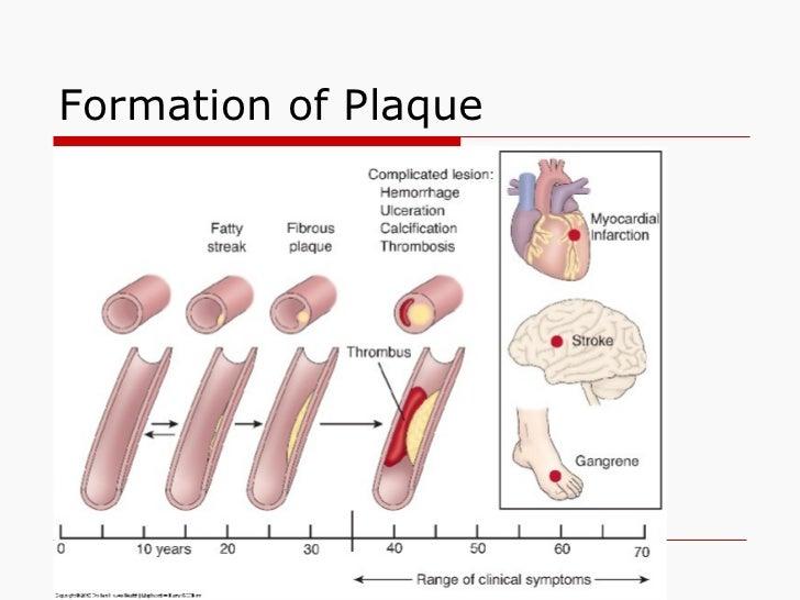 plavix and viagra