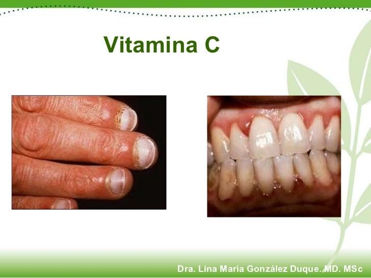 Vitamina C Dra. Lina María González Duque. MD. MSc