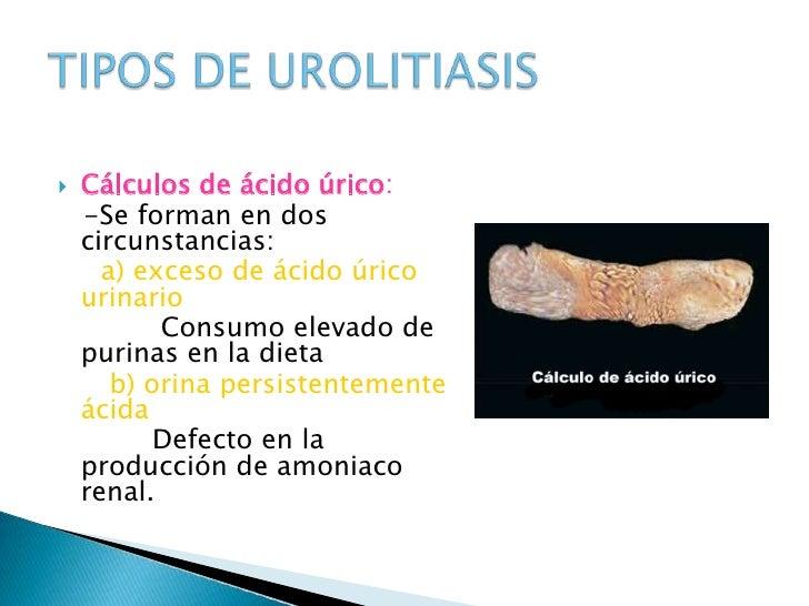 medicina para tratar la gota acido urico normal en mujeres gota en el pie pdf