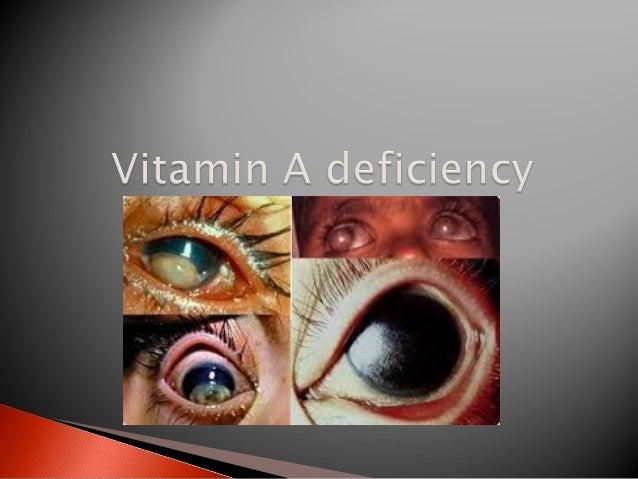 Niacin or vit B3 (or Tryptophan) deficiency