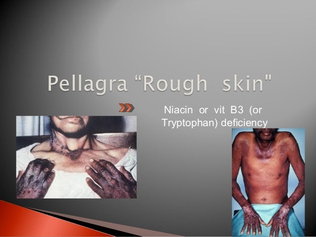  C/P: growth retardation & increased susceptibility to infections especially skin & eye lesions.  Prevention: consumptio...
