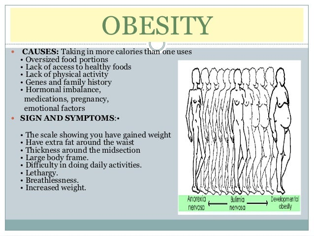 OBESITY  CAUSES: Taking in more calories than one uses  • Oversized food portions  • Lack of access to healthy foods  • L...
