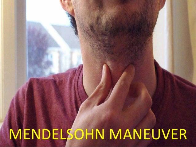 91 MENDELSOHN MANEUVER