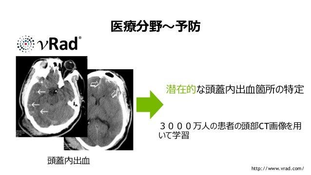 10 医療分野~予防 頭蓋内出血 潜在的な頭蓋内出血箇所の特定 3000万人の患者の頭部CT画像を用 いて学習 http://www.vrad.com/