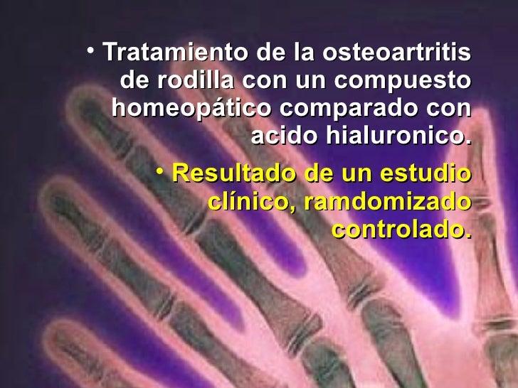 <ul><li>Tratamiento de la osteoartritis de rodilla con un compuesto homeopático comparado con acido hialuronico. </li></ul...