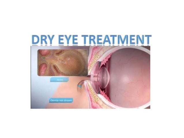 The most common symptoms of DRY EYES are:  Feelings of Dryness  Grittiness  Burning  Eye fatigue and  Discomfort