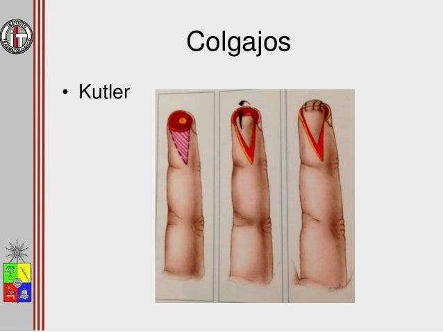 Colgajos • Hueston