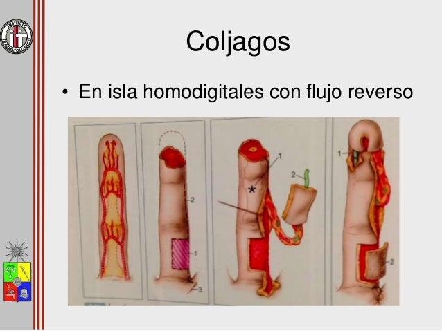 Colgajos • En isla homodigital con flujo reverso
