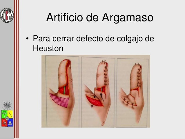 Lesión de Punta de los Dedos