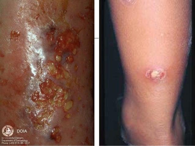Apres 12 jours rasage de ma pussy recouverte de poil - 3 7