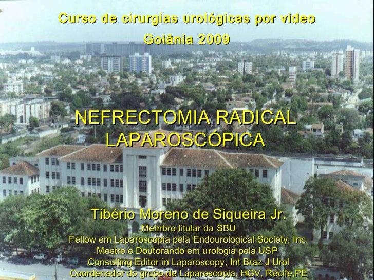 Curso de cirurgias urológicas por video Goiânia 2009 NEFRECTOMIA RADICAL LAPAROSCÓPICA Tibério Moreno de Siqueira Jr. Memb...