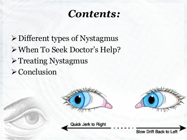 nystagmus- symptoms, causes & treatment options explained, Skeleton