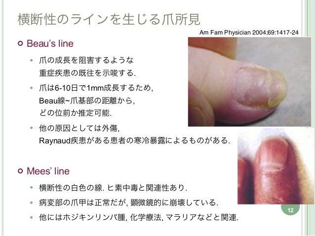 横断性のラインを生じる爪所見                                Am Fam Physician 2004;69:1417-24   Beau's line       爪の成長を阻害するような        ...