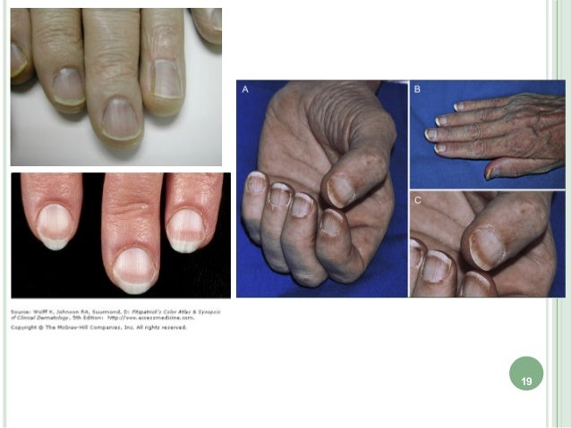 that most likely congestive heart failure and chronic renaldisease gradually led to a nail manifestation in cases 1and 2, ...