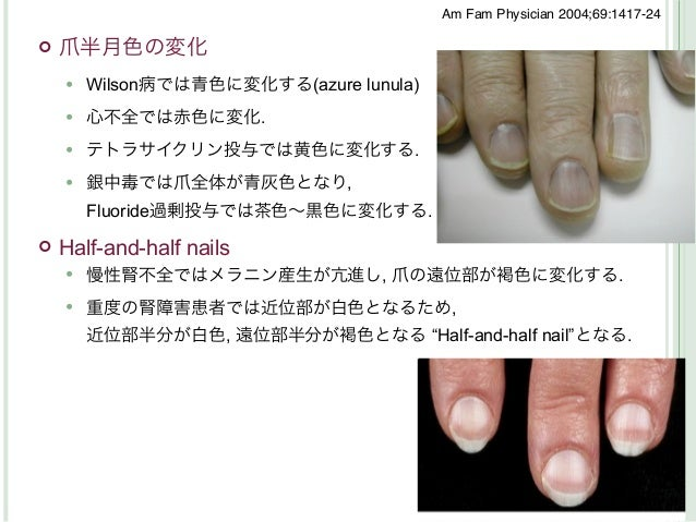 Am Fam Physician 2004;69:1417-24   爪半月色の変化       Wilson病では青色に変化する(azure lunula)       心不全では赤色に変化.       テトラサイクリン投与では黄色...