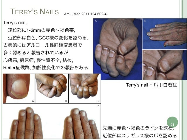 disease gradually led to a nail manifestation in cases 1                                                    and 2, respect...