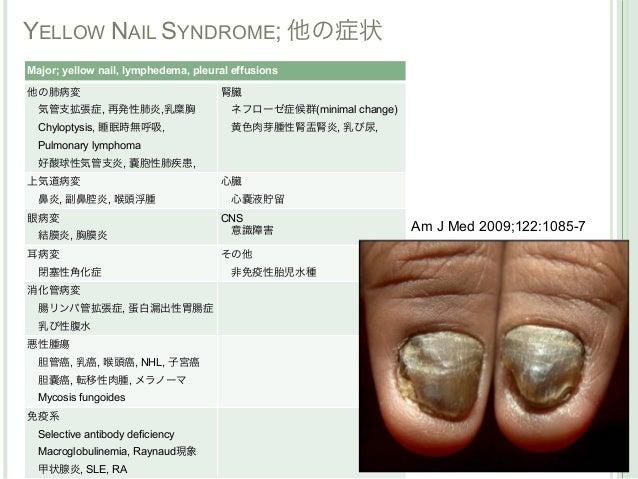 YELLOW NAIL SYNDROME; 他の症状Major; yellow nail, lymphedema, pleural effusions他の肺病変                                腎臓気管支拡張症,...