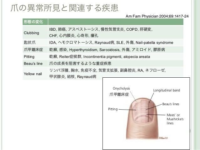 爪の異常所見と関連する疾患                                                        Am Fam Physician 2004;69:1417-24 形態の変化               ...