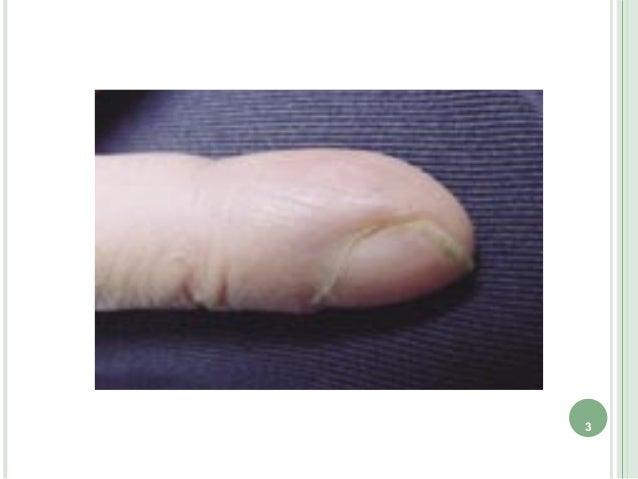 O 爪の所見 Slide 3