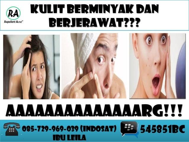 085 729 969 039 (INDOSAT) - IBU LEILA OBAT JERAWAT AMPUH ...