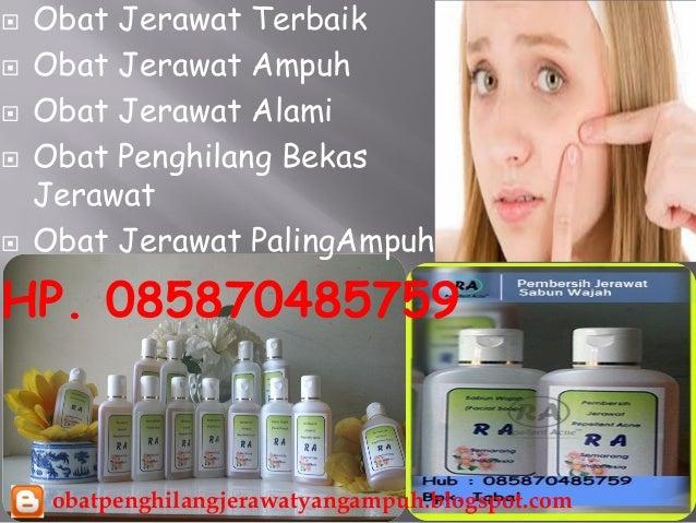 Obat jerawat alami paling ampuh 0858 7048-5759