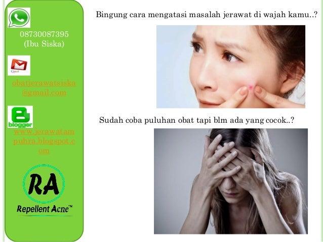 087830087395, Obat jerawat paling ampuh tanpa efek samping