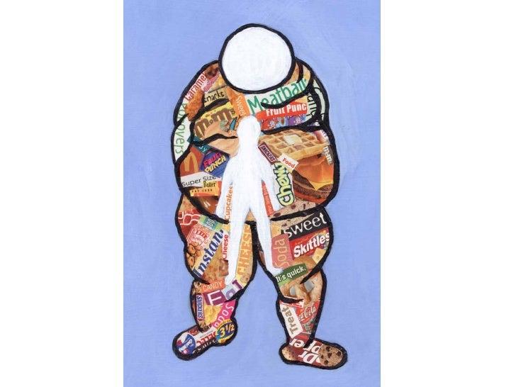 Obesidad1 Slide 1