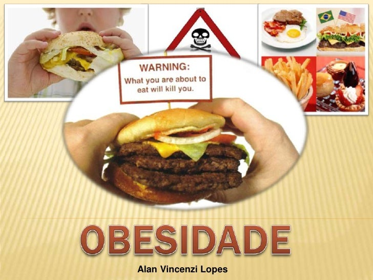OBESIDADE Alan Vincenzi Lopes