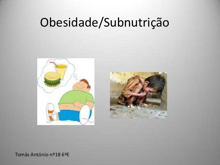 Obesidade/SubnutriçãoTomás António nº18 6ºE
