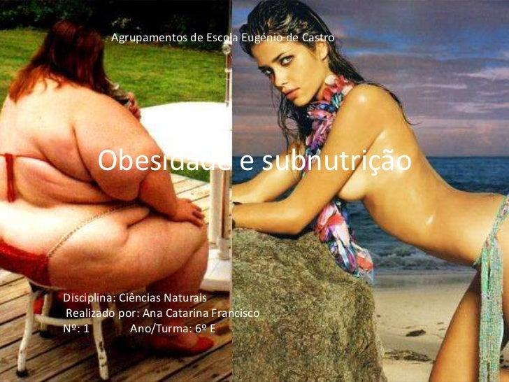 Agrupamentos de Escola Eugénio de Castro      Obesidade e subnutriçãoDisciplina: Ciências NaturaisRealizado por: Ana Catar...