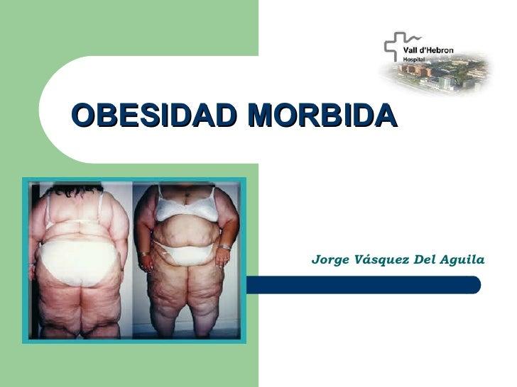 OBESIDAD MORBIDA           Jorge Vásquez Del Aguila