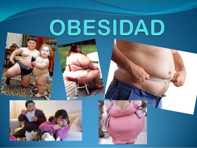 ¿QUE ES LA OBESIDAD?  La palabra «obeso» proviene del latín obēsus, que  significa 'corpulento, gordo o regordete'. Ēsus ...